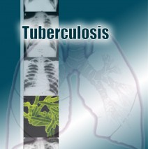 Tuberculosis (Manual for the students of medical universities)